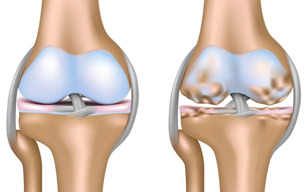 Artrosi: tra sintomi e alleati